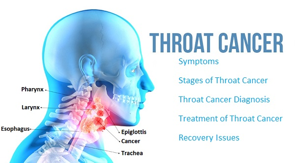 Throat-Cancer-causes-symptoms
