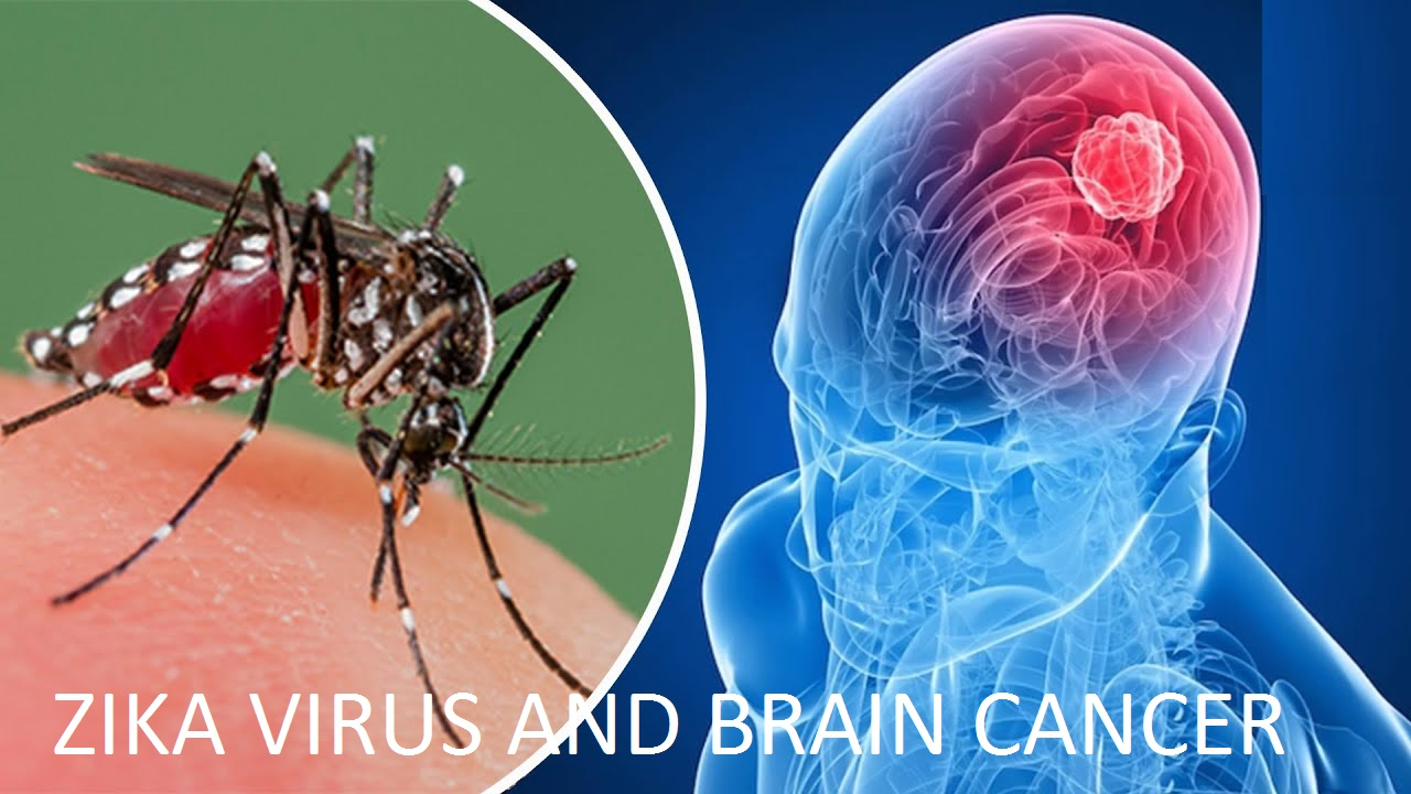 Zika Virus and Brain Cancer