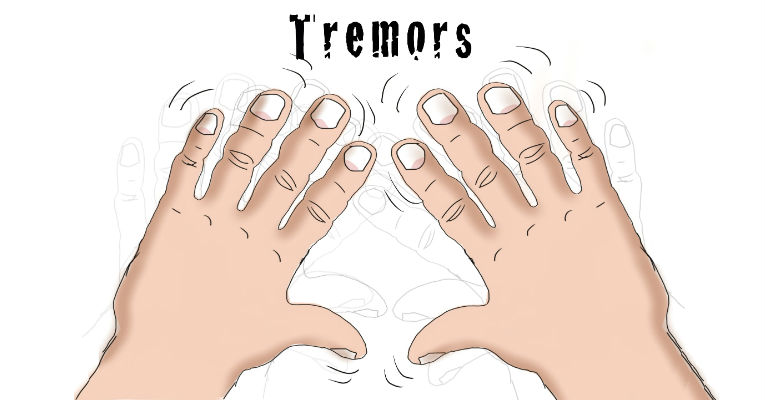 All About Essential Tremors