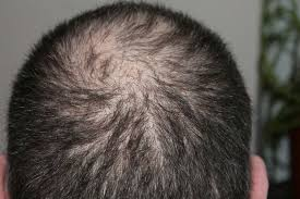 Know About Hair Loss